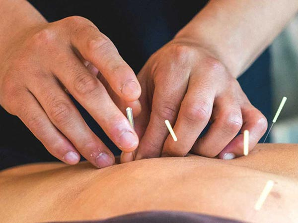 Acupuncture at Crawford Wellness in McMinnville, Oregon